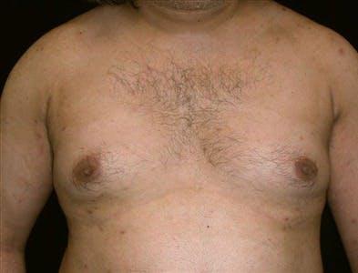 Gynecomastia Gallery - Patient 39350121 - Image 1