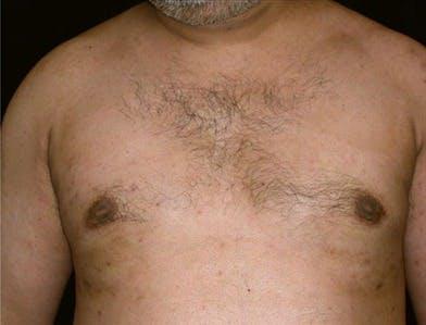 Gynecomastia Gallery - Patient 39350121 - Image 2