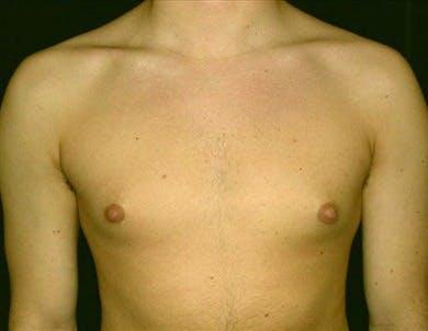 Gynecomastia Gallery - Patient 39350122 - Image 1