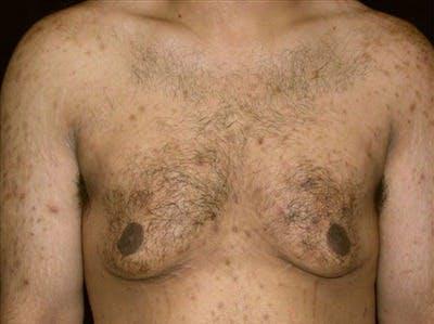 Gynecomastia Gallery - Patient 39350129 - Image 1