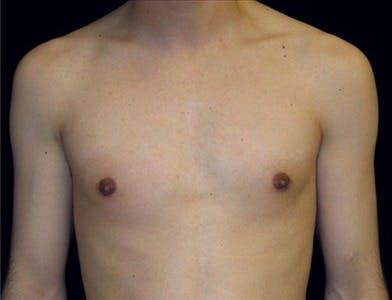 Gynecomastia Gallery - Patient 39350133 - Image 2