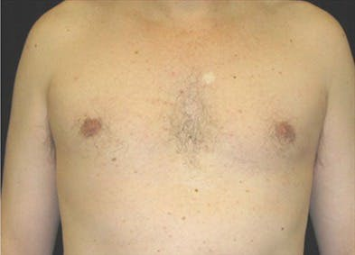 Gynecomastia Gallery - Patient 39350136 - Image 2