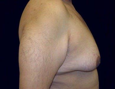 Gynecomastia Gallery - Patient 39350143 - Image 1