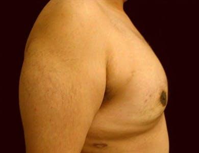 Gynecomastia Gallery - Patient 39350143 - Image 2