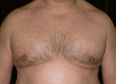 Gynecomastia Gallery - Patient 39350148 - Image 2