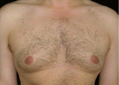 Gynecomastia Gallery - Patient 39350290 - Image 1