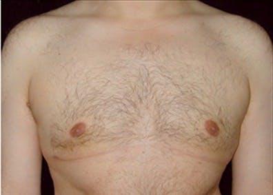 Gynecomastia Gallery - Patient 39350290 - Image 2