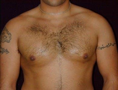 Gynecomastia Gallery - Patient 39350295 - Image 2