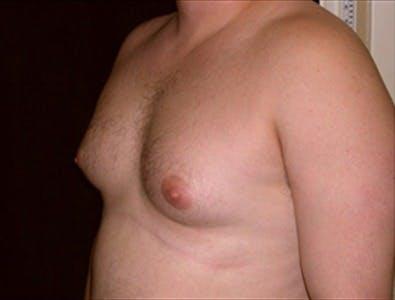Gynecomastia Gallery - Patient 39350296 - Image 1