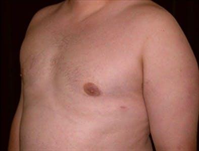 Gynecomastia Gallery - Patient 39350296 - Image 2