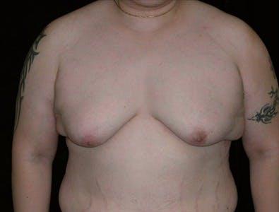 Gynecomastia Gallery - Patient 39350306 - Image 1