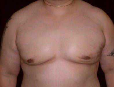 Gynecomastia Gallery - Patient 39350306 - Image 2