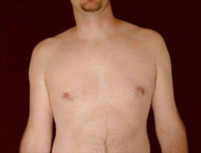 Gynecomastia Gallery - Patient 39350311 - Image 2