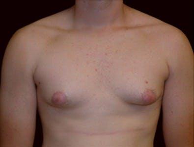 Gynecomastia Gallery - Patient 39350313 - Image 1