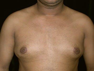 Gynecomastia Gallery - Patient 39350391 - Image 1