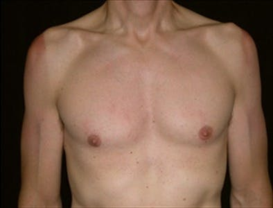 Gynecomastia Gallery - Patient 39350398 - Image 2