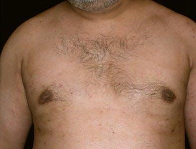 Gynecomastia Gallery - Patient 39350410 - Image 2