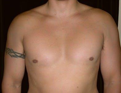 Gynecomastia Gallery - Patient 39350415 - Image 2