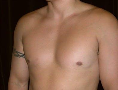 Gynecomastia Gallery - Patient 39350415 - Image 4