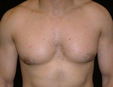 Gynecomastia Gallery - Patient 39350432 - Image 1