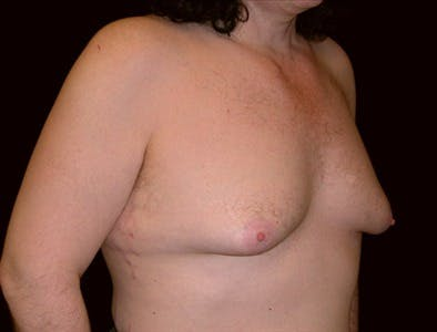 Gynecomastia Gallery - Patient 39350437 - Image 1