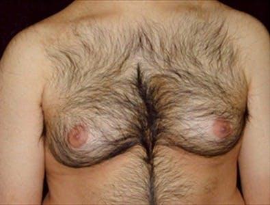 Gynecomastia Gallery - Patient 39350438 - Image 1