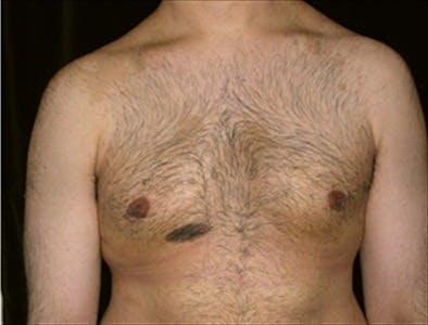 Gynecomastia Gallery - Patient 39350438 - Image 2