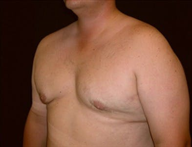 Gynecomastia Gallery - Patient 39350443 - Image 2