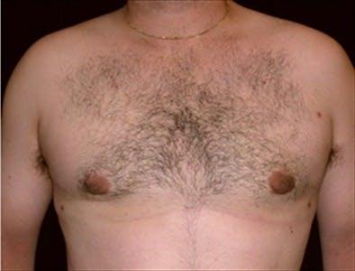 Gynecomastia Gallery - Patient 39350444 - Image 2