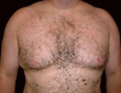 Gynecomastia Gallery - Patient 39350445 - Image 1