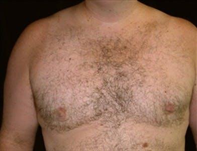 Gynecomastia Gallery - Patient 39350445 - Image 2