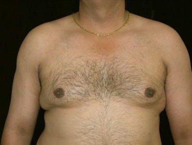 Gynecomastia Gallery - Patient 39350447 - Image 1