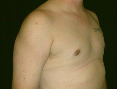Gynecomastia Gallery - Patient 39350448 - Image 2