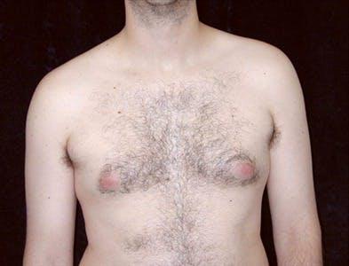 Gynecomastia Gallery - Patient 39350467 - Image 1