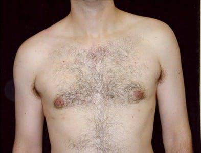 Gynecomastia Gallery - Patient 39350467 - Image 2