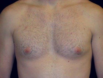 Gynecomastia Gallery - Patient 39350477 - Image 1
