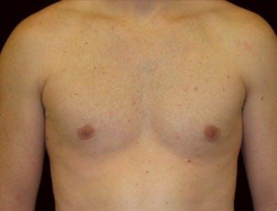 Gynecomastia Gallery - Patient 39350477 - Image 2