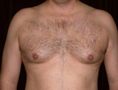 Gynecomastia Gallery - Patient 39350479 - Image 1