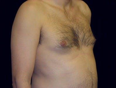 Gynecomastia Gallery - Patient 39350483 - Image 1