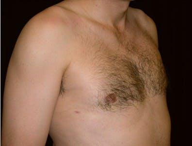 Gynecomastia Gallery - Patient 39350483 - Image 2