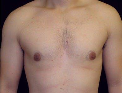 Gynecomastia Gallery - Patient 39350484 - Image 2