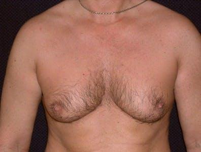 Gynecomastia Gallery - Patient 39350491 - Image 1
