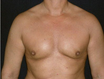 Gynecomastia Gallery - Patient 39350491 - Image 2