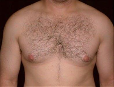 Gynecomastia Gallery - Patient 39350492 - Image 1