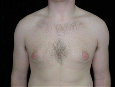 Gynecomastia Gallery - Patient 39350496 - Image 1