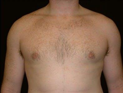 Gynecomastia Gallery - Patient 39350496 - Image 2