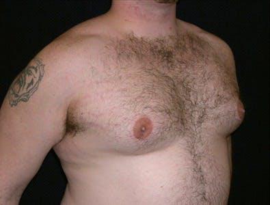 Gynecomastia Gallery - Patient 39350498 - Image 1