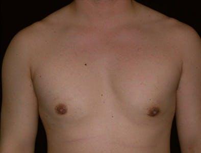 Gynecomastia Gallery - Patient 39350501 - Image 2