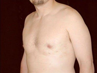 Gynecomastia Gallery - Patient 39350504 - Image 2