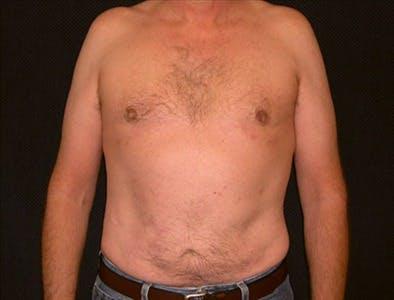 Gynecomastia Gallery - Patient 39350509 - Image 2